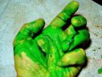 У пациента во время операции пошла зеленая кровь – врачи в шоке