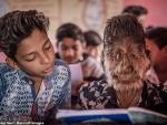 В Индии мальчик превратился в «оборотня» из-за редкого заболевания