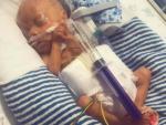 В Британии выходили недоношенного младенца размером со шприц