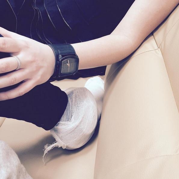 фото перебинтованная нога